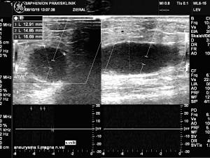 saphenion-vsl,aneurysma