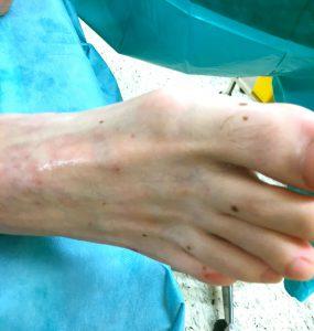 venasealtherapie, aneurysma venosum