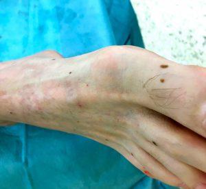 venasealtherapie aneurysma venosum2