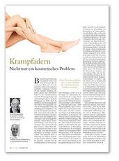 Berliner Morgenpost, Krampfader nicht nur ein kosmetisches Problem, Dezember 2016