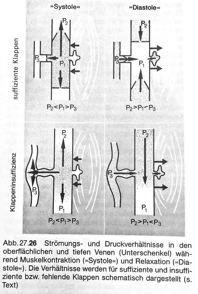 Dieses Bild hat ein leeres Alt-Attribut. Der Dateiname ist SAPHENION-DR.ZIERAU-Venöse-Strömung-normal-und-Varicosis-688x1024.jpg
