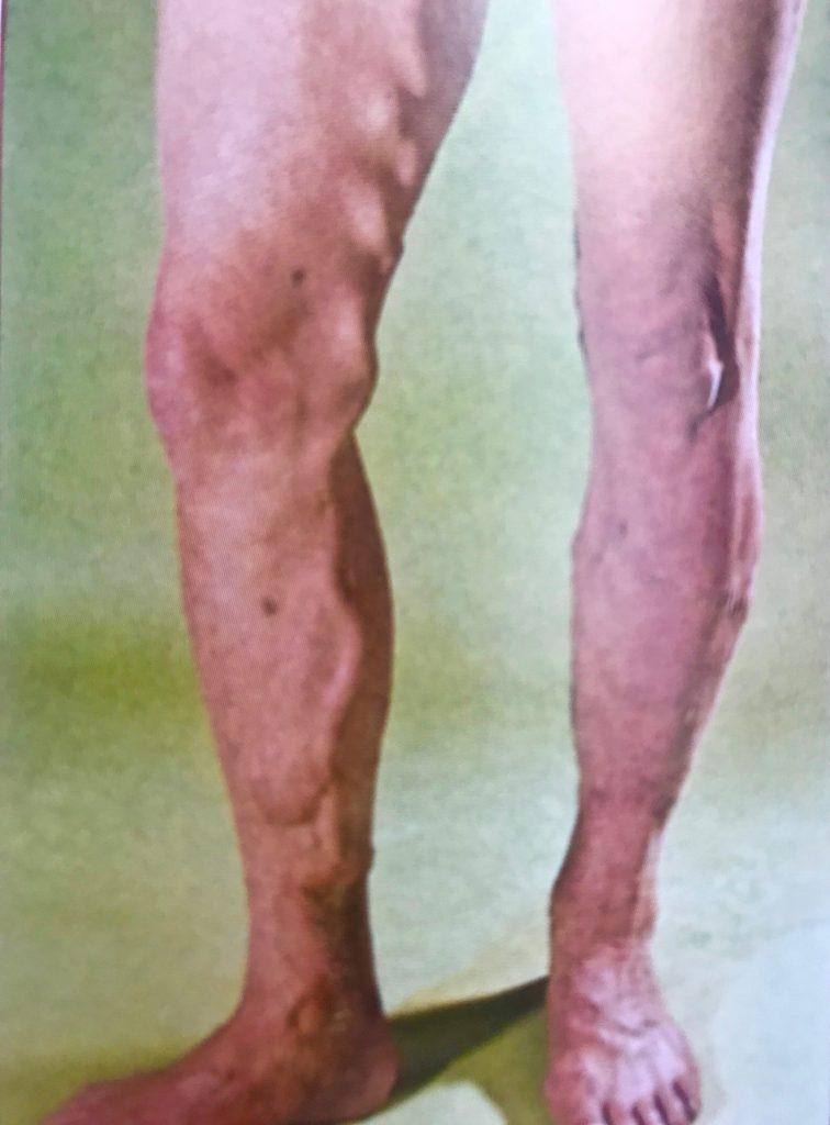 Dieses Bild hat ein leeres Alt-Attribut. Der Dateiname ist saphenion-dr.zierauklinisches-Bild-Venenerweiterunganeurysma-756x1024.jpg