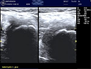 saphenion-bakers-cyst-after-sealing2